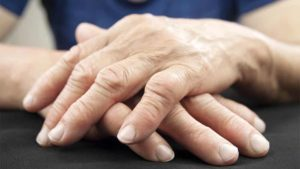 hidroterapia artrite